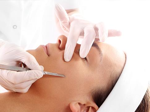 Dermaplaning treatment. Facial Aesthetics Clinic in Clanfield and Waterlooville.
